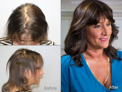 Before and After: Sheri wearing a CNC hair system