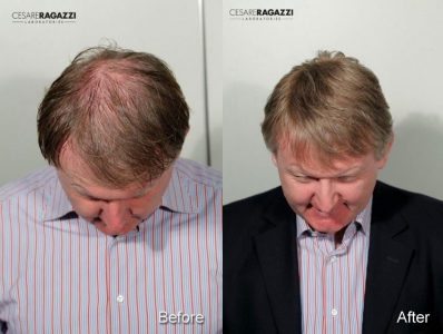 Before and After: Stefano wearing a CNC hair system