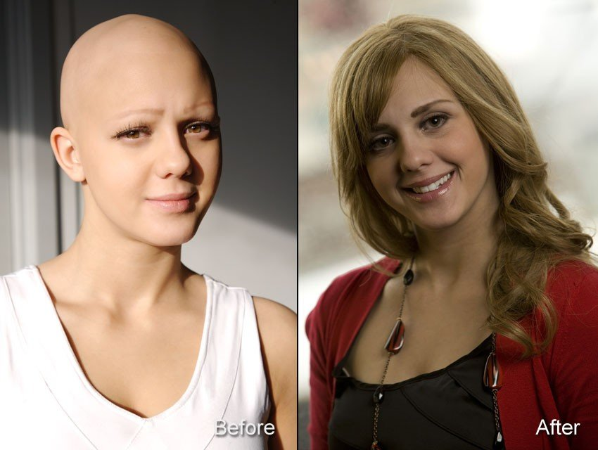 before and after picture of Michelle with alopecia