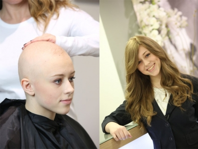 before and after photo of woman with alopecia