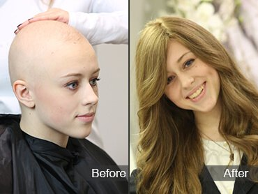 Before and After Alopecia