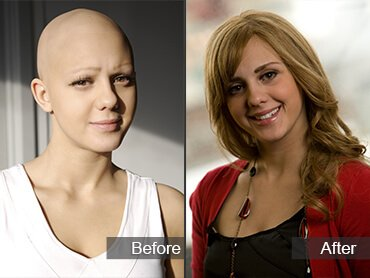 Chemotherapy Hair Loss