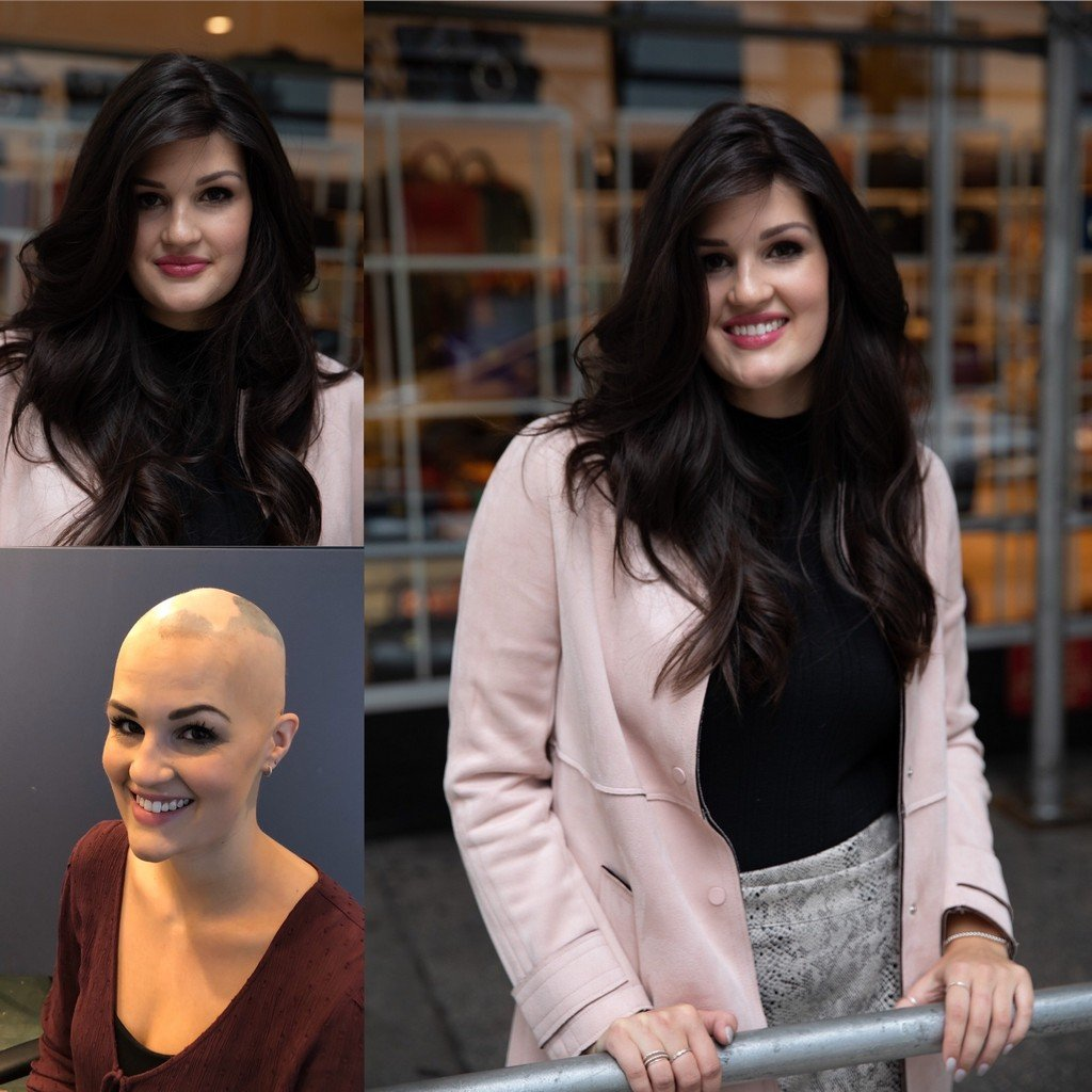 before and after woman with alopecia wearing wig