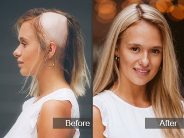 cassie johnston - before & after - alopecia
